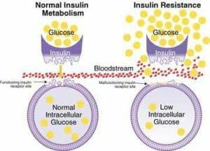 อาหารคีโต ช่วยภาวะต้านอินซูลิน อาจช่วย รักษาเบาหวาน ได้